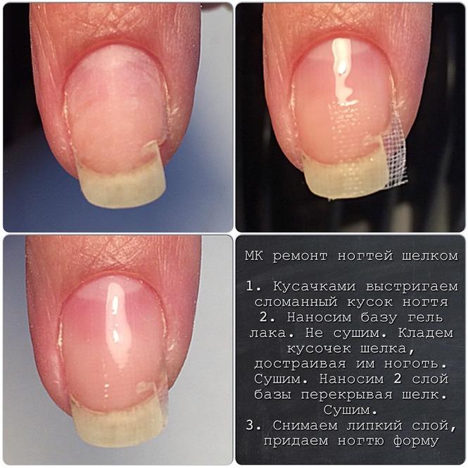 Ремонт ногтя гель-лаком